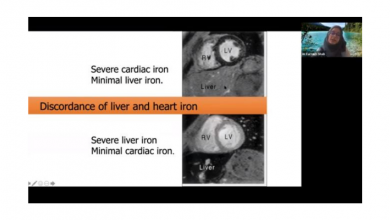 Photo of eThalED Webinar Series: Current Standard Care & New Advances in Iron Chelation